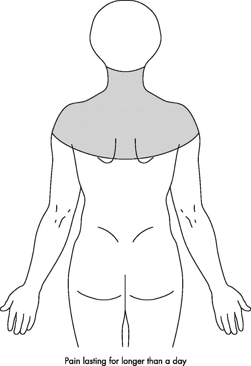 Download Figure  C2 B7 Open In New Tab  C2 B7 Download Powerpoint Figure 1 Definition Of Neck Shoulder Pain