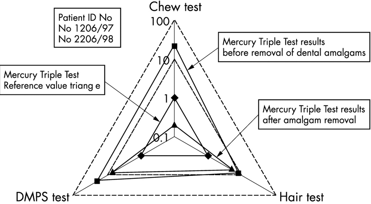 Evaluation Of The Mercury Exposure Dental Amalgam Patients By Database As A First Testi Come Up With Following Circuit Download Figure