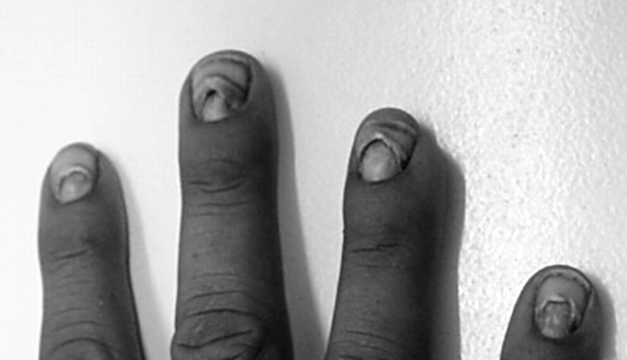 erosion of nails following thallium poisoning  a case