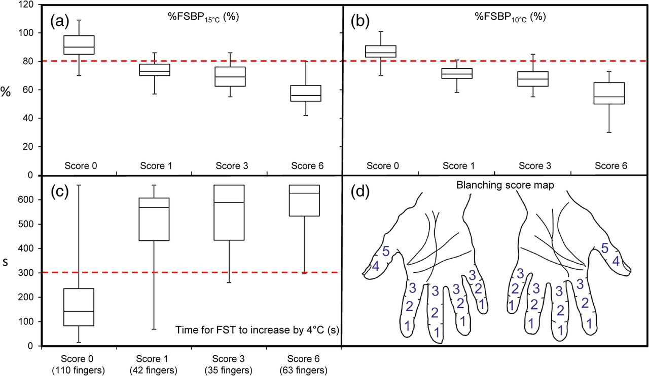 Assessment Of Two Alternative Standardised Tests For The Vascular Finger Other Fingers As Shown In Diagram Method 2 Index Download Figure