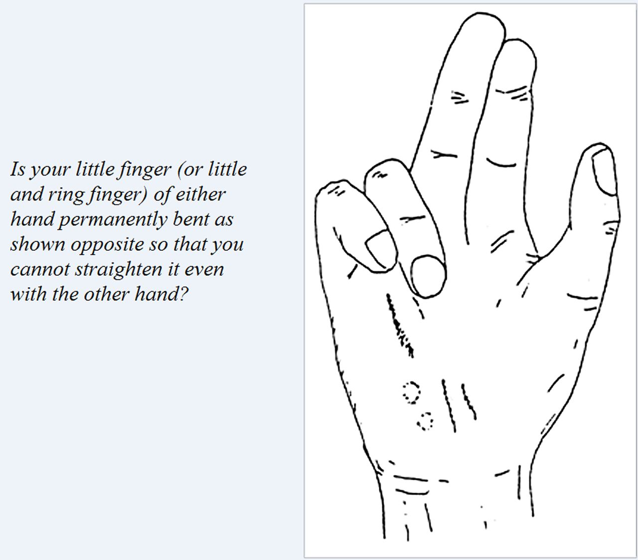 Dupuytren's contracture and occupational exposure to hand